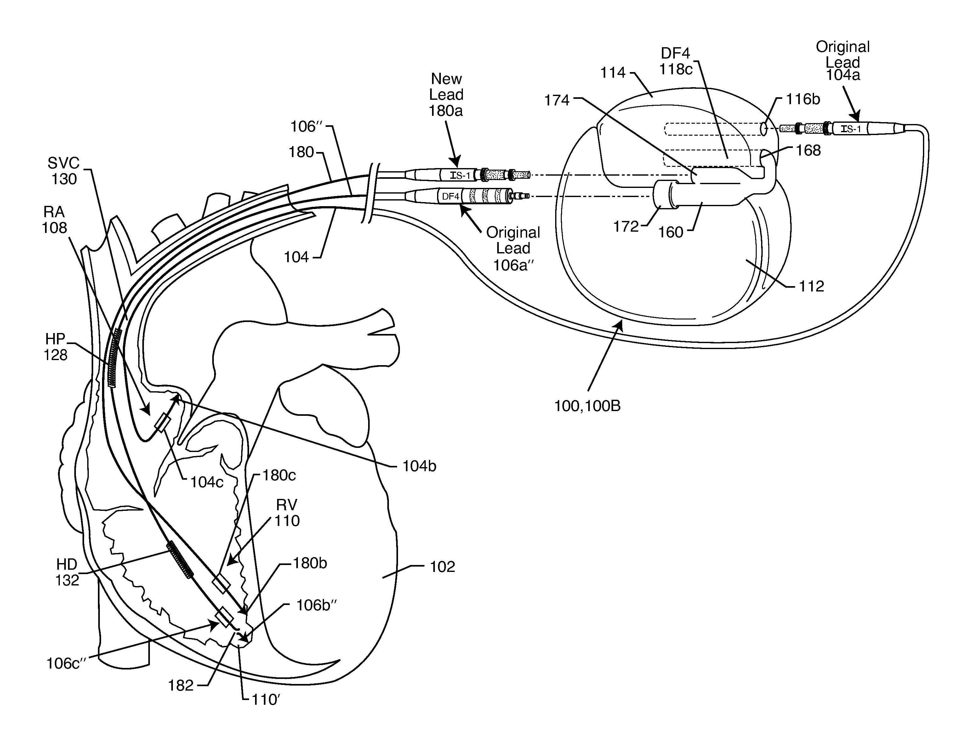 Mastercraft 351w Wiring Diagram