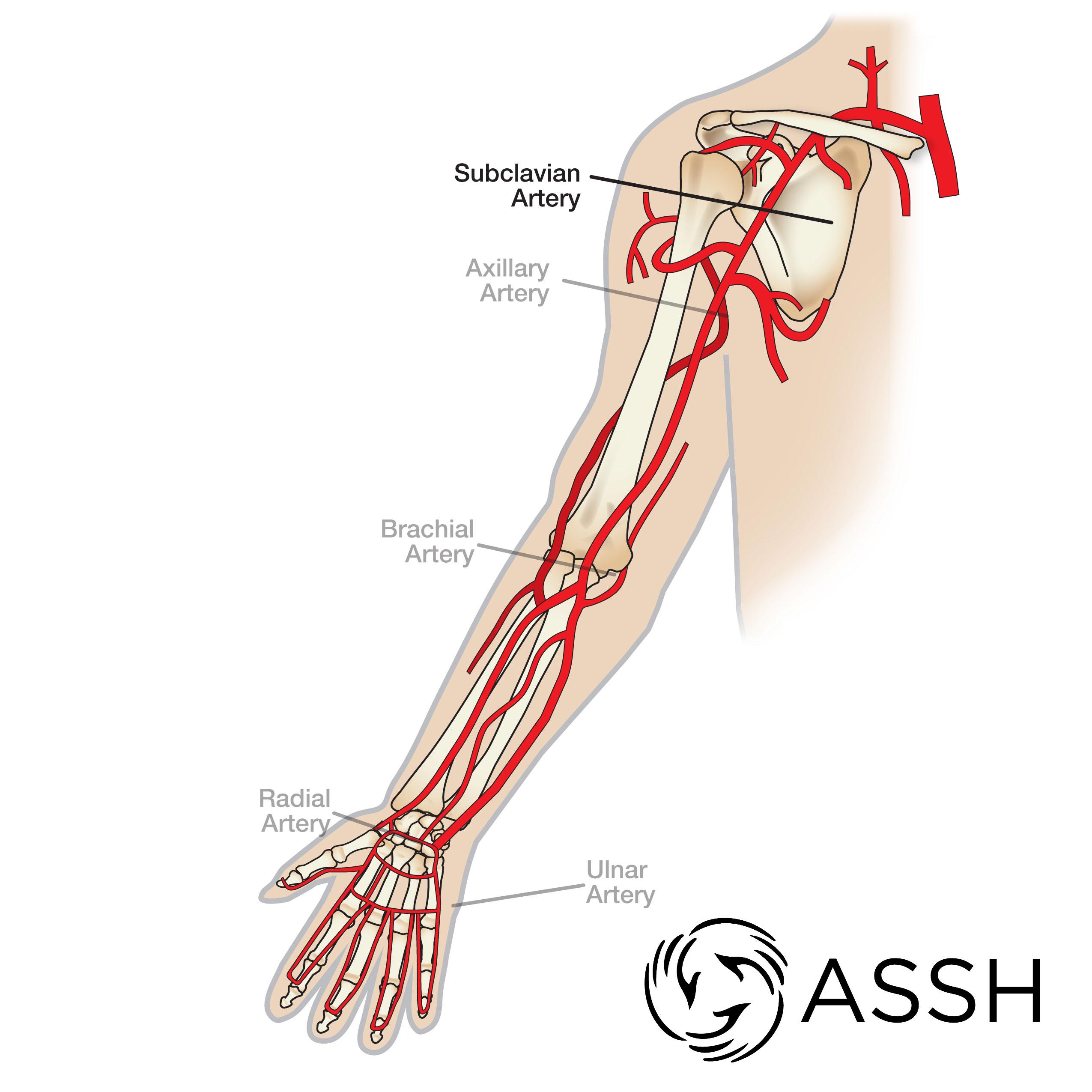 Lymphedema Arm Disease Diagram Poster Wiring Diagram